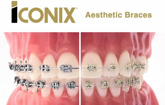 Braces - Sutton Orthodontics