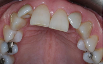 Before - Sutton Orthodontics