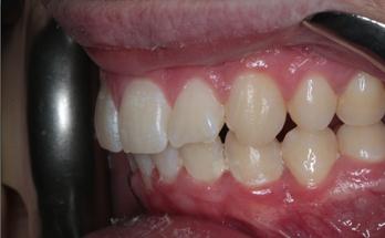 After - Sutton Orthodontics